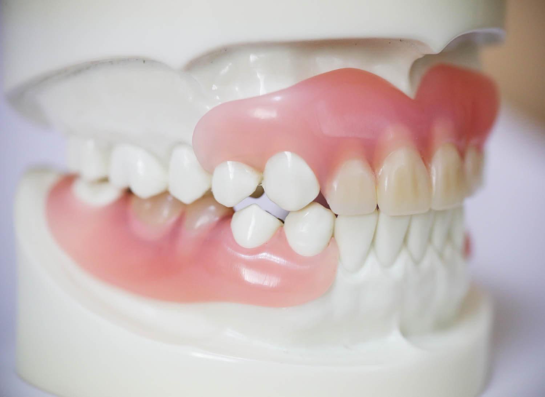 琴似・八軒・琴似駅・琴似八軒結び歯科クリニック・歯周病治療