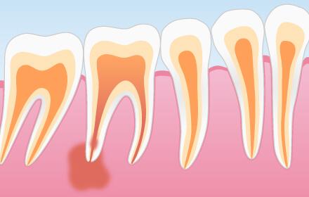 琴似・八軒・琴似駅・琴似八軒結び歯科クリニック・歯根嚢胞